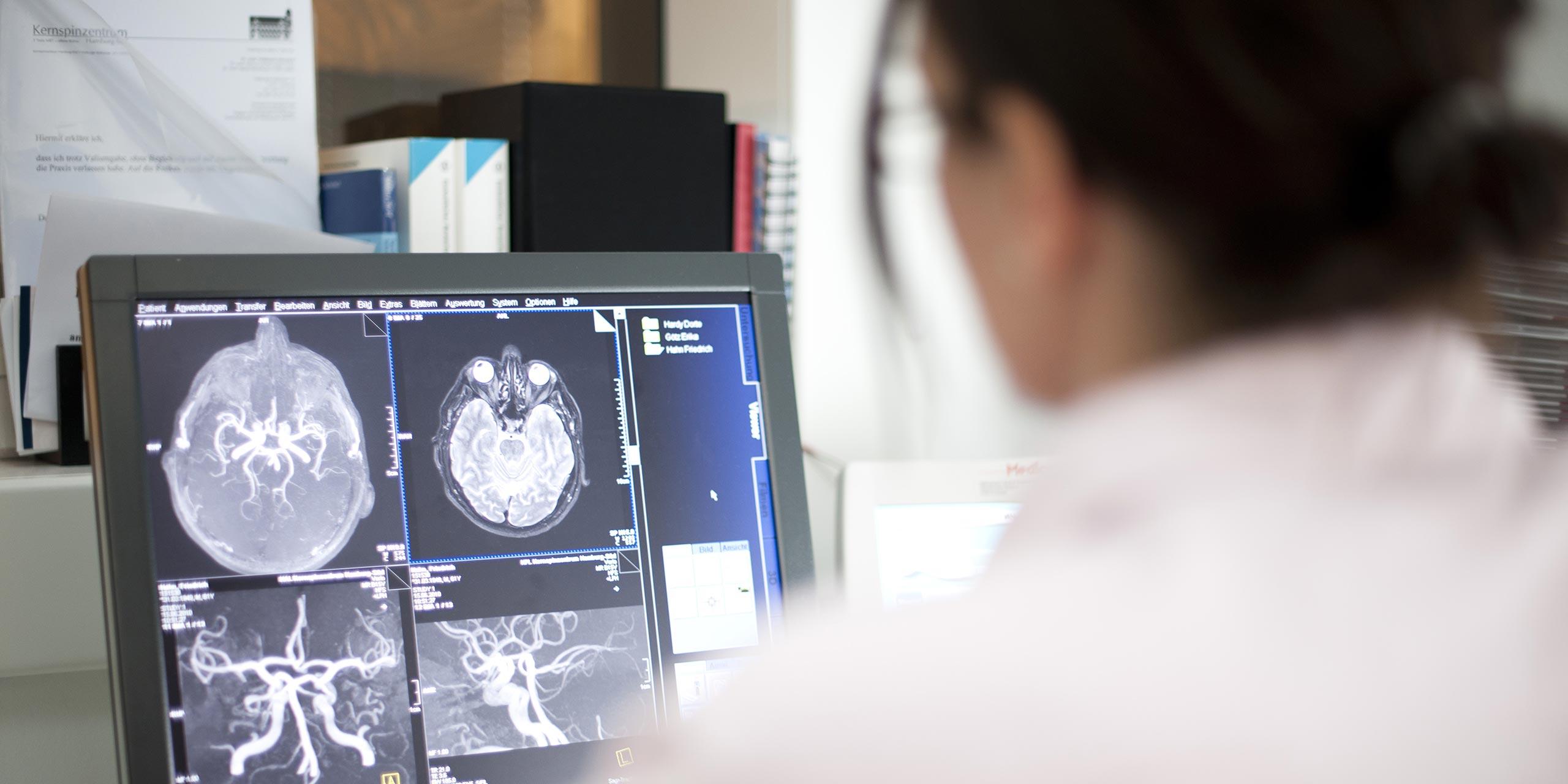 Kernspinzentrum Hamburg-Süd - Spektrum - Digitale Mammographie
