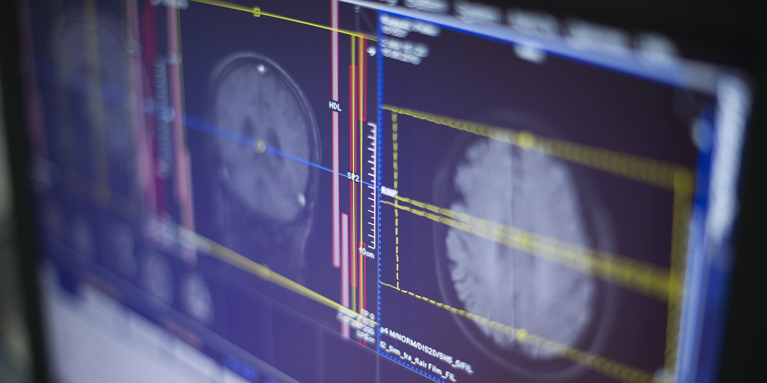 Kernspinzentrum Hamburg-Süd - Spektrum - Schmerztherapie